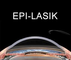 Epi-lasik ooglaserbehandeling